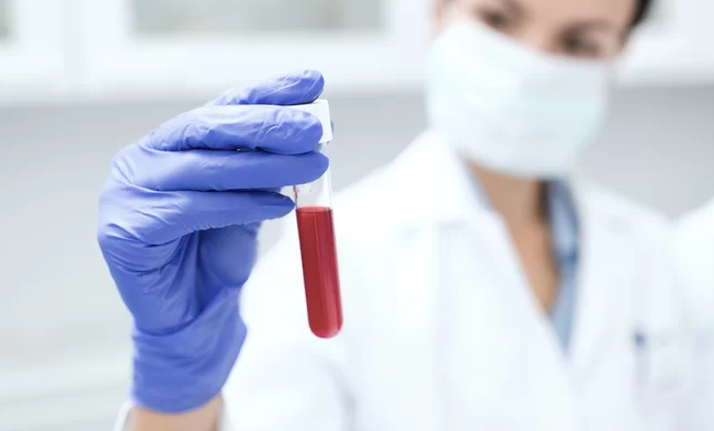 Why You Should Go For Blood Tests Regularly