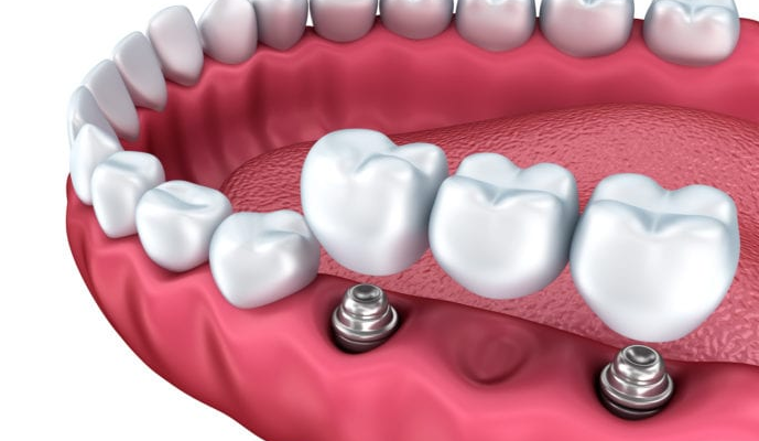 Tooth Replacement Options You Should Know